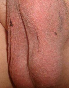 Bilateral vasectomy healing progress day 3