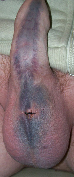 Abnormal bruising on penis 3 days after vasectomy