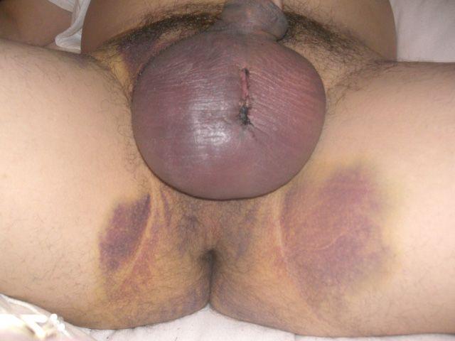 orgasm after vasectomy reversal jpg 1200x900