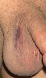 Normal bruising after vasectomy day 8 - Image 3