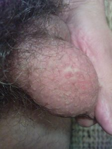 Bilateral vasectomy scar, right side