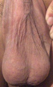 Median raphe vasectomy scar