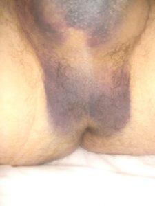 Hematoma from vasectomy reversal - 4 hours