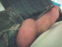 No scalpel vasectomy fully healed - Image 2