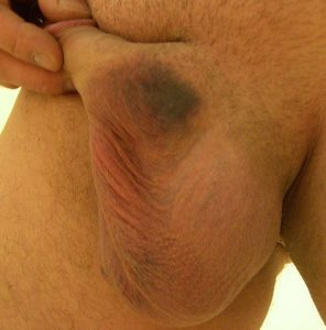 Normal bruising after vasectomy day 5 - Image 1