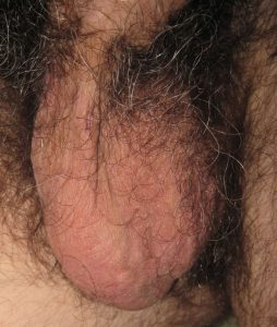Typical vasectomy recovery with one testicle - Day 5