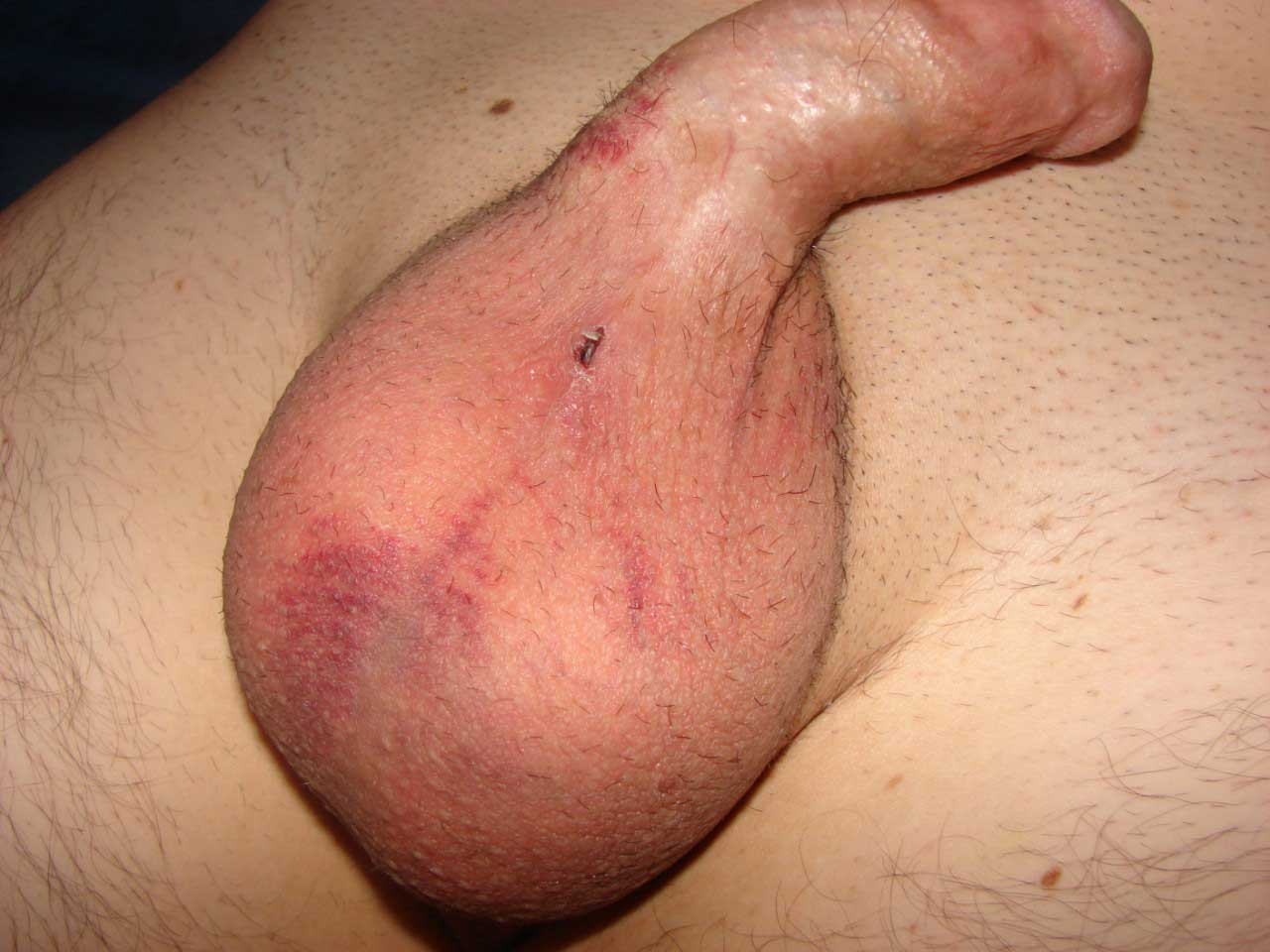 What could cause a painless bruise on penis