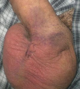 Vasectomy incision four days after operation