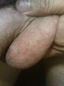 Bilateral vasectomy scar, left side
